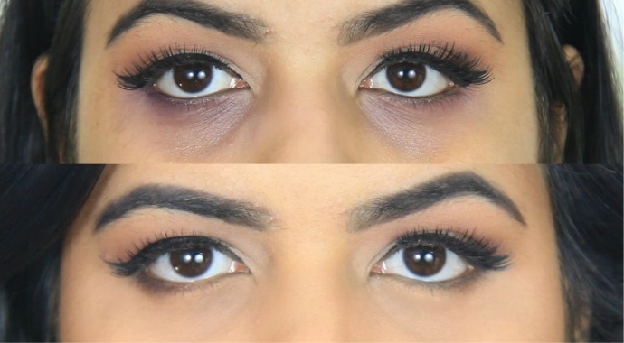 como se livrar das olheiras